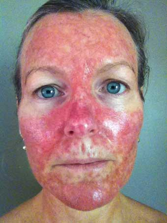 steroid cream skin cancer